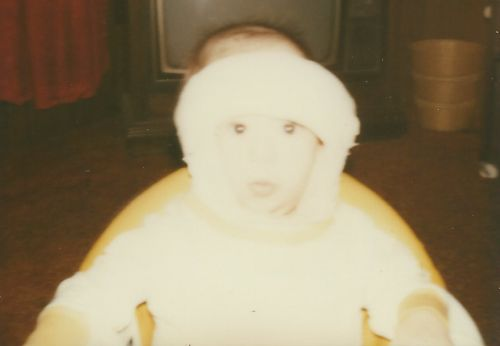 I needed a major surgery when I was just 6 months old. It resulted in needing a half-body cast. Crazy, right?